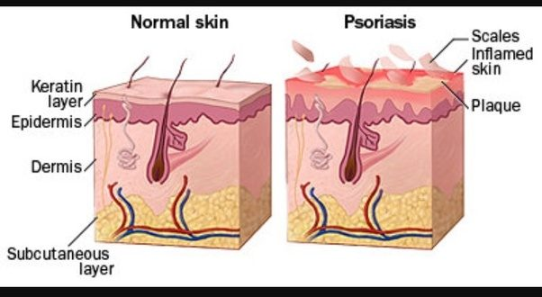 Image result for what causes scalp psoriasis