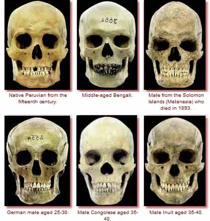 Sorry, that Skull structures different races