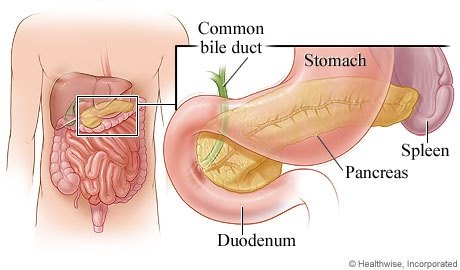 What Is Pancreatic Cancer Quora