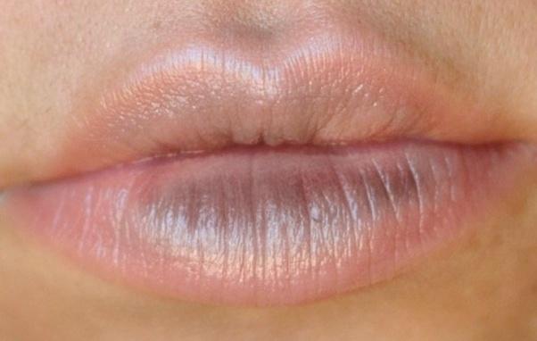 Why Did My Bottom Lip Turn Black How Do I Get Rid Of It