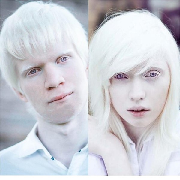 Does albinism affect white people? - Quora