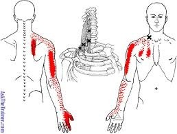 What can i do if ive had a pinched nerve in my neck for the past the main goal of initial therapy has to be directed toward calming the nerves signal and inflammation as well as reducing pressure the pinch on it publicscrutiny Images