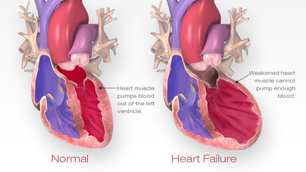 What qualifies a patient for a heart transplant quora so who are the suitable patients for a heart transplant ccuart Image collections
