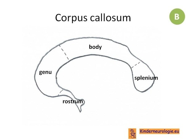 What are the parts of corpus callosum? - Quora