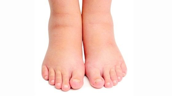 diabetes swollen foot treatment