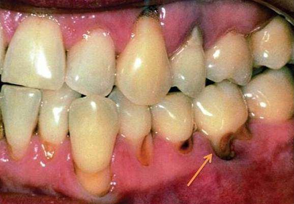 If my tooth filling keeps falling out what should i do quora does the cavity look similar to this solutioingenieria Images