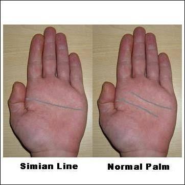 Crease disorders palmar single genetic Simian crease