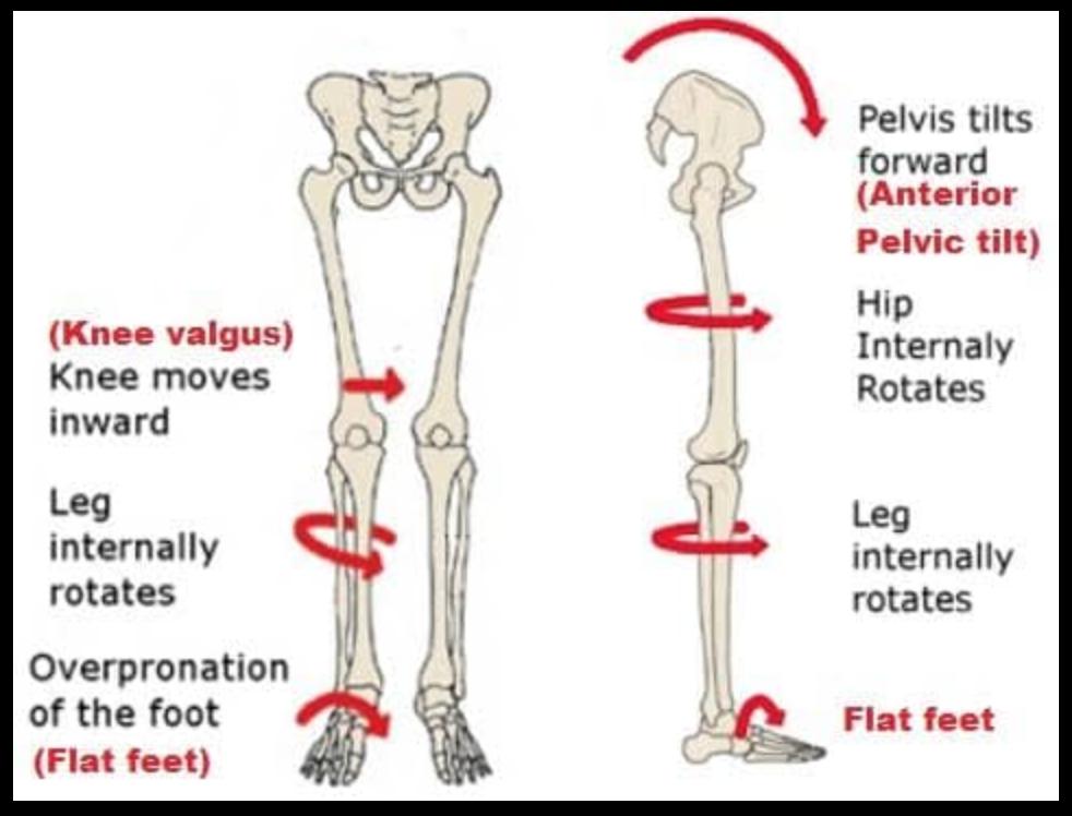 What yoga poses will fix an anterior pelvic tilt? - Quora