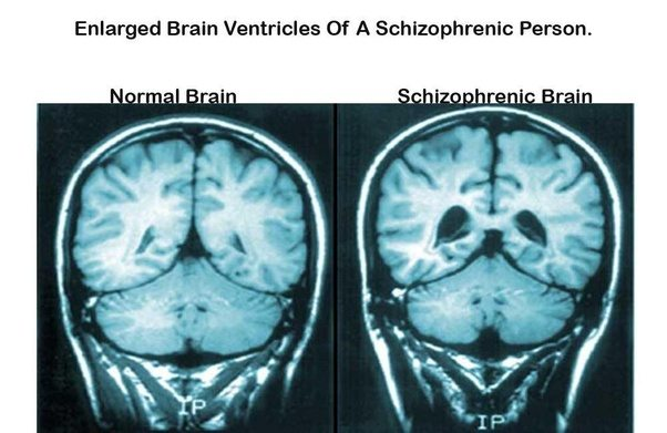 AP Psych 3B