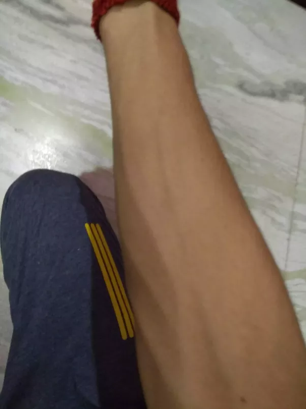 veins in arm very visible