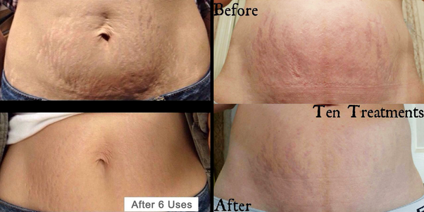 What can I use to get rid of strech marks? - Quora