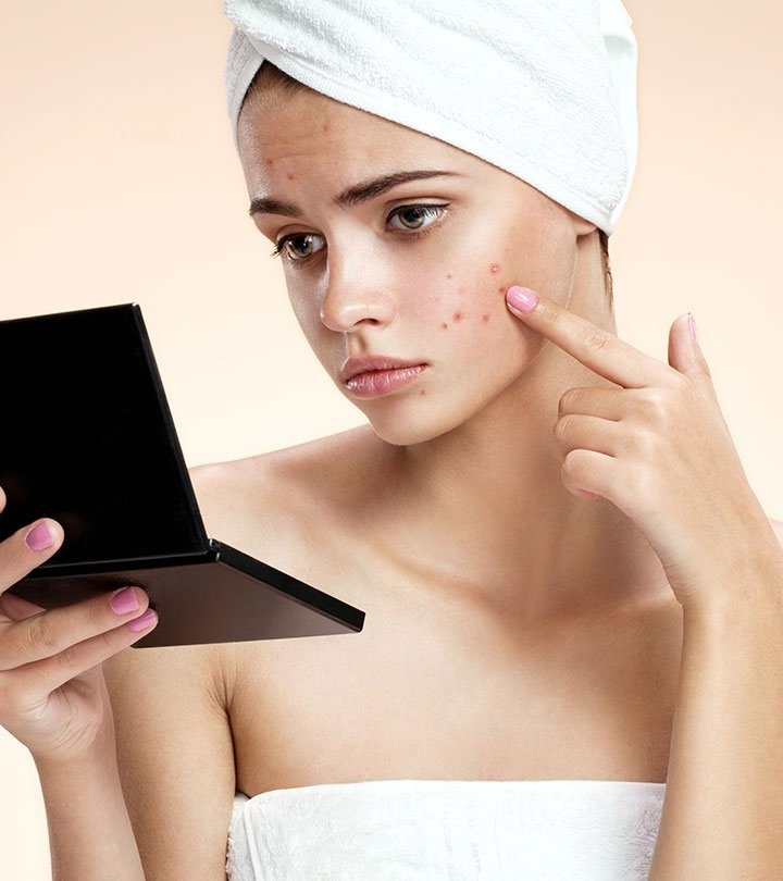 How To Reduce Pimples Overnight Quora