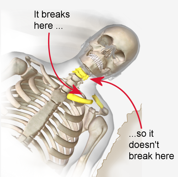 Why is a clavicle easily fractured? - Quora