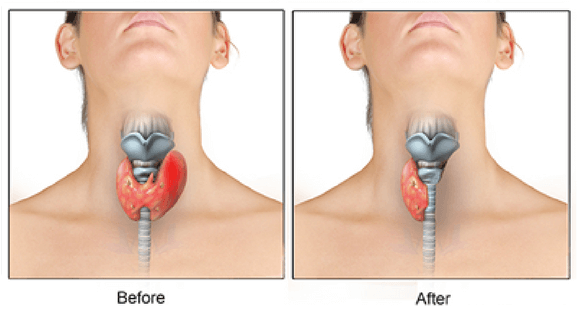 What Is A Thyroid Surgery Like Quora