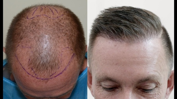 No sex day after hair transplant