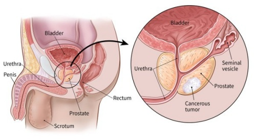 prostatitis in my 30s
