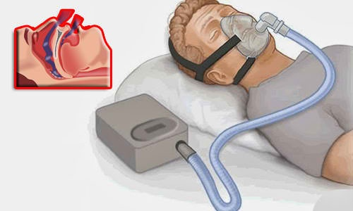 Sleep Apnea: How are CPAP machines able to measure apnea-hypopnea