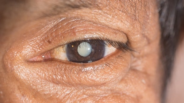 What are some Ayurveda treatments for the eyes? - Quora