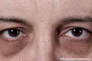 Why do we get black spots under eyes? - Quora