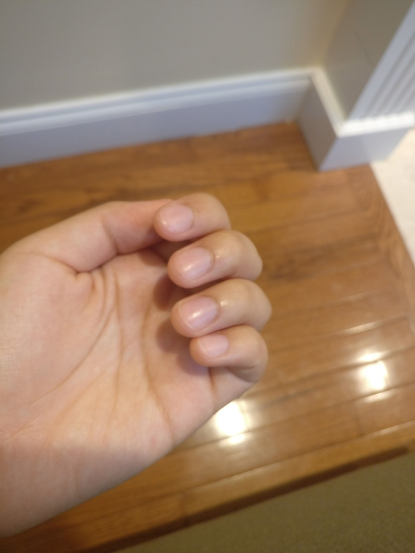Are long nails (on left hand) troublesome when playing the violin ...