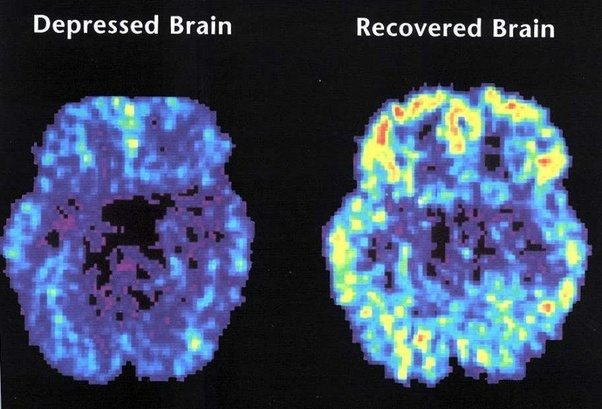 What parts of the brain does depression affect? - Quora