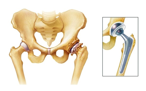 How Much Does A Hip Replacement Cost Quora