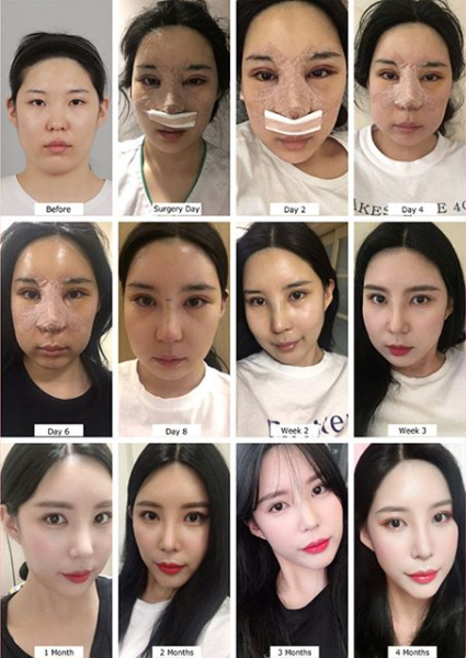 Plastic Surgery How Long Is Recovery Time From Rhinoplasty Quora