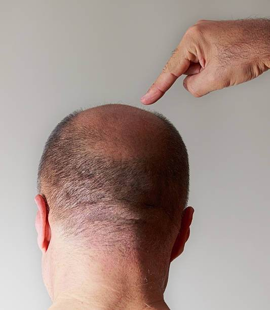 What Is The Difference Between Hair Weaving And A Hair Transplant