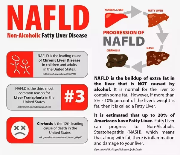 Natural Way To Treat Fatty Liver Disease