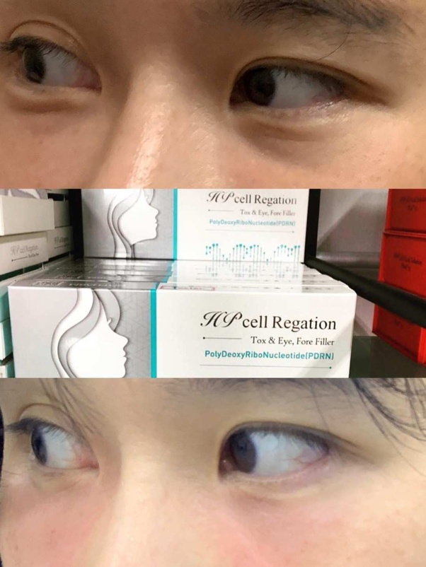 Would you recommend undereye fillers like Restylane or