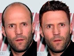 Balding men attractive