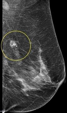 breast cancer diagnosis Mri