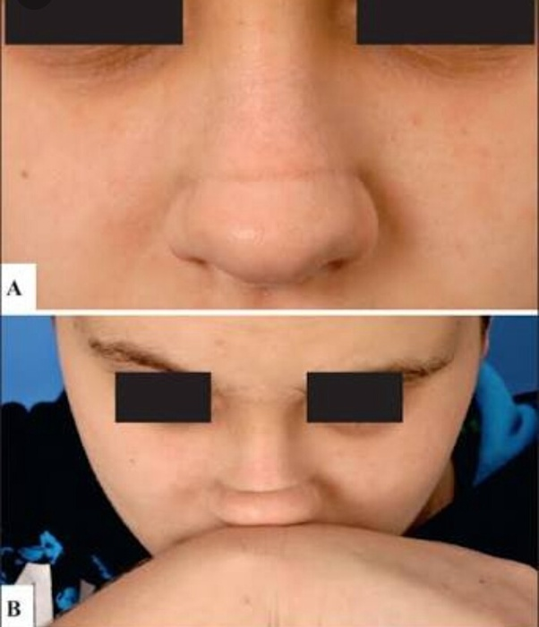 What does it mean if you have a black line on your nose? - Quora