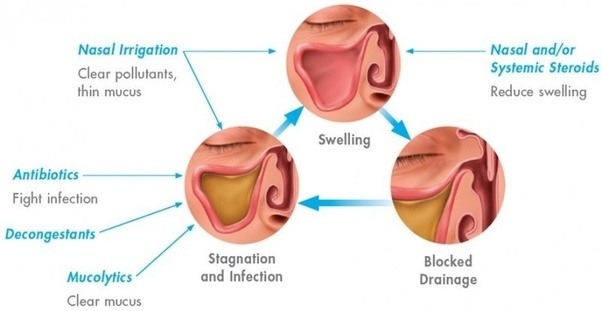 What S A Good Medicine And Or Home Remedy For Sinusitis