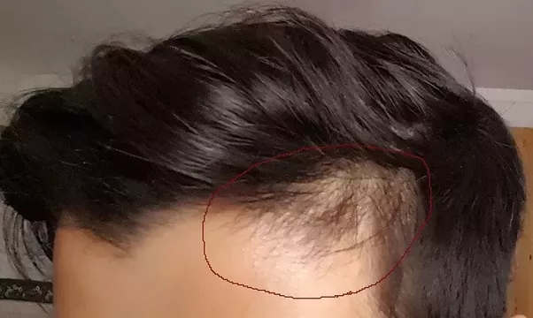 If You Are Experiencing Hair Loss That Occurs On One Side Of The Head This Can Be A Sign More Serious Issue Or It Signal To