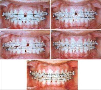 What is the procedure to decrease a gap between the front two teeth ...