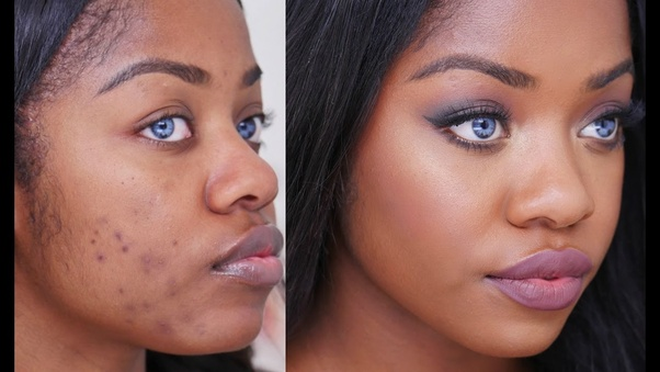 Why Don T Black People Have Acne Quora
