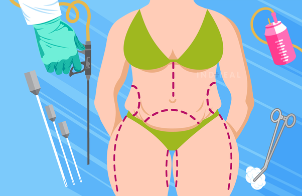 How much will liposuction cost in India? - Quora
