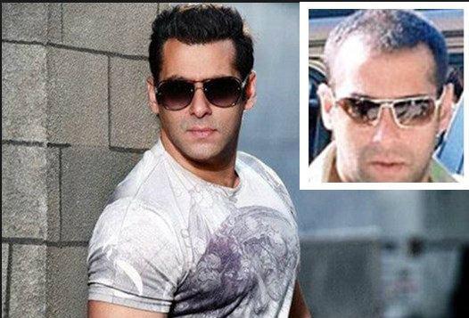 Where did Salman Khan get his hair transplant? - Quora