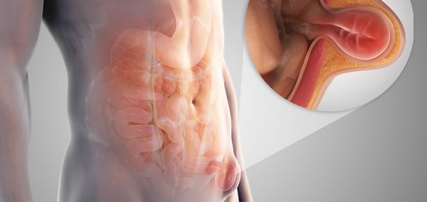 Sex post inguinal hernia surgery