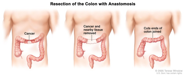 Where Is The Best Colon Cancer Treatment Quora