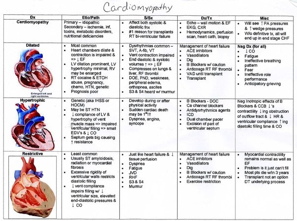What is the difference between dilated cardiomyopathy and ...
