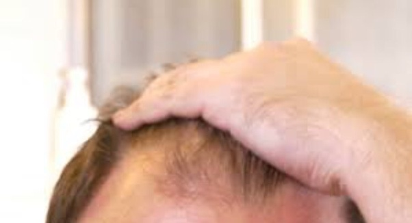 How To Stop Receding Hairline Quora