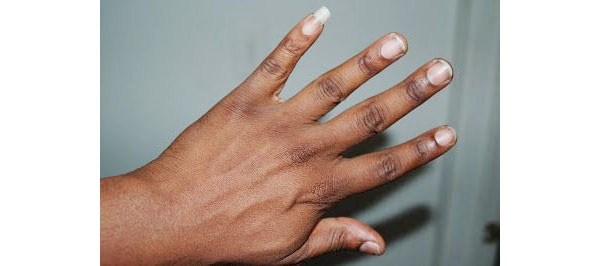 Why do some people, usually men, have a very long pinky little
