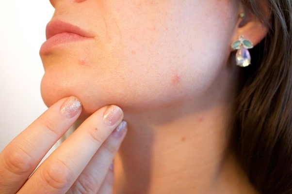 What is the best remedy to treat scars caused due to boils