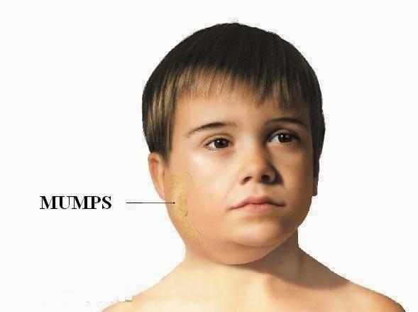 mumps - photo #11