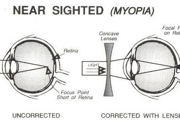 plus hipermetropie minus miopie