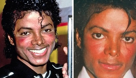 Why did Michael Jackson's skin turn white? - Quora