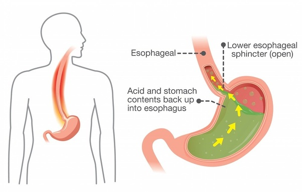 What are best home remedies for loose motion & stomach ache