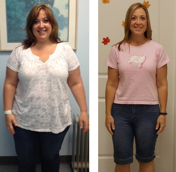 How Much Does Bariatric Weight Loss Surgery Cost?